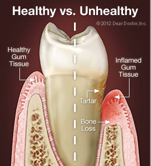 Periodontal disease Richmond VA