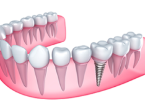 Precision Dental Implants: The Treatment for Missing Teeth