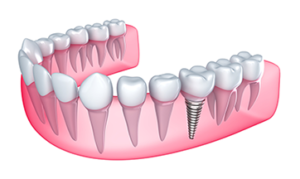 choose dental implants