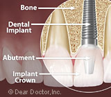 dental implants Richmond VA