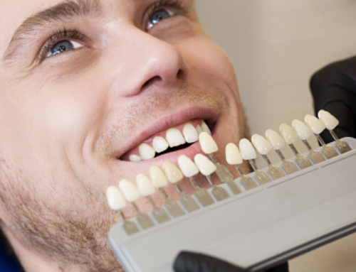 Whitening Teeth with Dental Implants